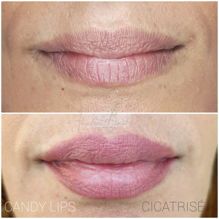 Maquillage-permanent-angeline-rennes-lèvres-candyl